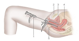 8. HysteroscopeA copy Hysteroscopy