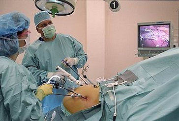 Laparoscopy in india