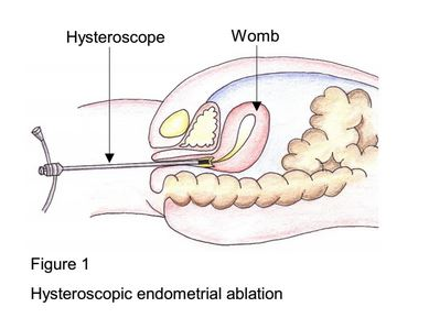 Hysteroscopic endometrial ablation word
